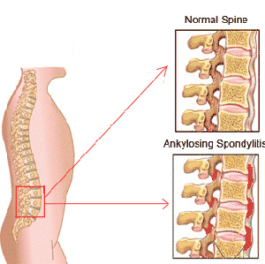the history causes and characteristics of ankylosing spondylitis an inflammatory disease What causes ankylosing spondylitis  your doctor will also ask if you have a family history of this joint disease or  linked with inflammatory bowel disease.