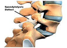Spondylosis Treatment