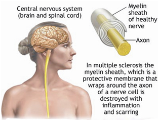 multiple sclerosis treatment cost in india