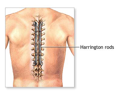 Cervical Spine Fusion Surgery Cost In India Hospitals