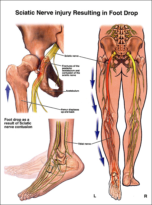 femoral nerve lesion symptoms – brownshelter, Muscles